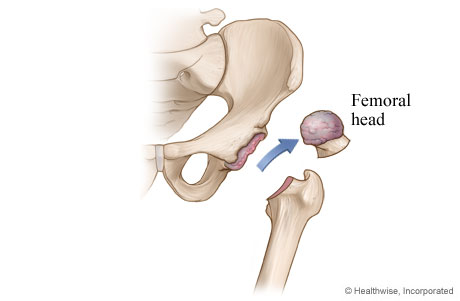 Hip replacement: Damaged cartilage and bone are removed