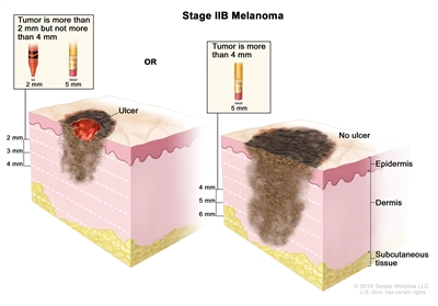 Two-panel drawing of stage IIB melanoma; the panel on the left shows a tumor that is more than 2 but not more than 4 millimeters thick, with ulceration (a break in the skin). The panel on the right shows a tumor that is more than 4 millimeters thick, without ulceration. Also shown are the epidermis (outer layer of the skin), the dermis (inner layer of the skin), and the subcutaneous tissue below the dermis.
