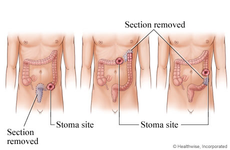 Possible stoma sites