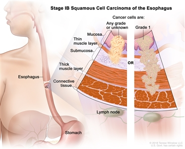 Stage IB squamous cell carcinoma of the esophagus; drawing shows the esophagus and stomach. A two-panel inset shows the layers of the esophagus wall: the mucosa layer, thin muscle layer, submucosa layer, thick muscle layer, and connective tissue layer. The lymph nodes are also shown. The left panel shows cancer cells that are any grade or of an unknown grade in the mucosa layer, thin muscle layer, and submucosa layer. The right panel shows grade 1 cancer cells in the mucosa layer, thin muscle layer, submucosa layer, and thick muscle layer.