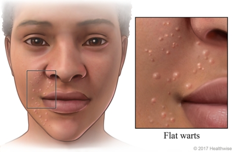 Area on side of face covered with small flat warts with close-up of small bumps.