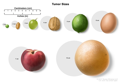 Drawing shows different sizes of a tumor in centimeters (cm) compared to the size of a pea (1 cm), a peanut (2 cm), a grape (3 cm), a walnut (4 cm), a lime (5 cm), an egg (6 cm), a peach (7 cm), and a grapefruit (10 cm). Also shown is a 10-cm ruler and a 4-inch ruler.
