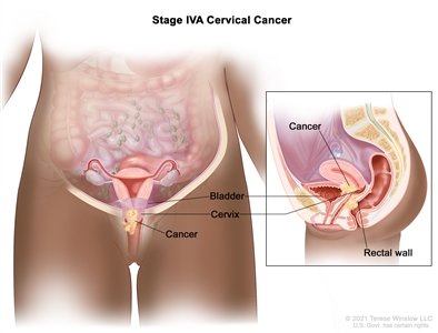 Stage IVA cervical cancer; drawing and inset show cancer that has spread from the cervix to the bladder and rectal wall.
