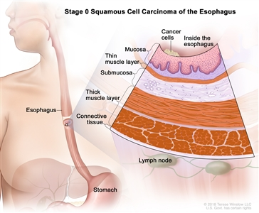 Stage 0 squamous cell carcinoma of the esophagus; drawing shows the esophagus and stomach. An inset shows cancer cells in the inner lining of the esophagus wall. Also shown are the mucosa layer, thin muscle layer, submucosa layer, thick muscle layer, and connective tissue layer of the esophagus wall. The lymph nodes are also shown.