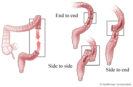 Three ways that colon ends can be reattached after surgery