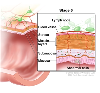 Stage 0 colorectal carcinoma in situ; drawing shows a cross-section of the colon/rectum. An inset shows the layers of the colon/rectum wall with abnormal cells in the mucosa layer. Also shown are the submucosa, muscle layers, serosa, a blood vessel, and lymph nodes.